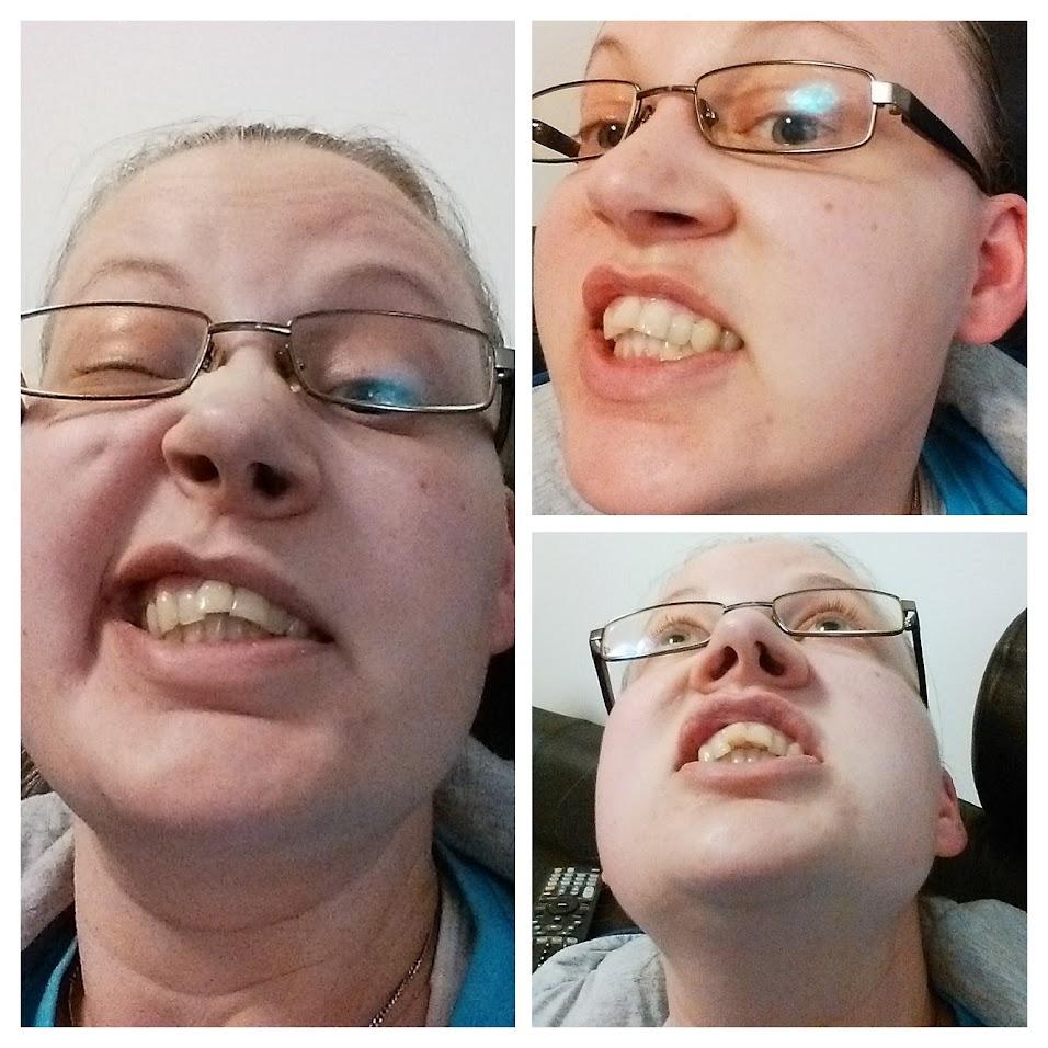 Nu påbörjas processen mot raka, fina tänder. Inget mer fult överbett, alltså!