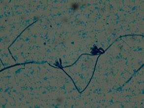 Photo: Penicilium-Azul de metileno. Contaminante del laboratorio.