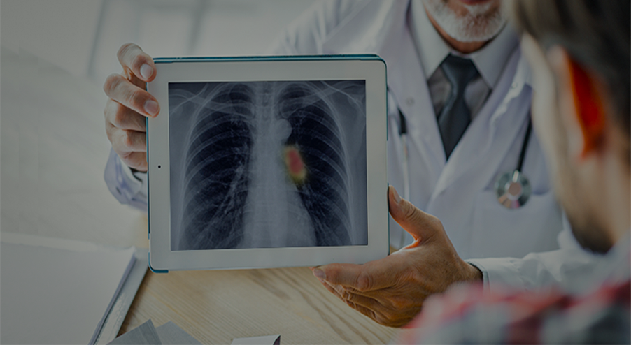 AI for Pneumonia Detection
