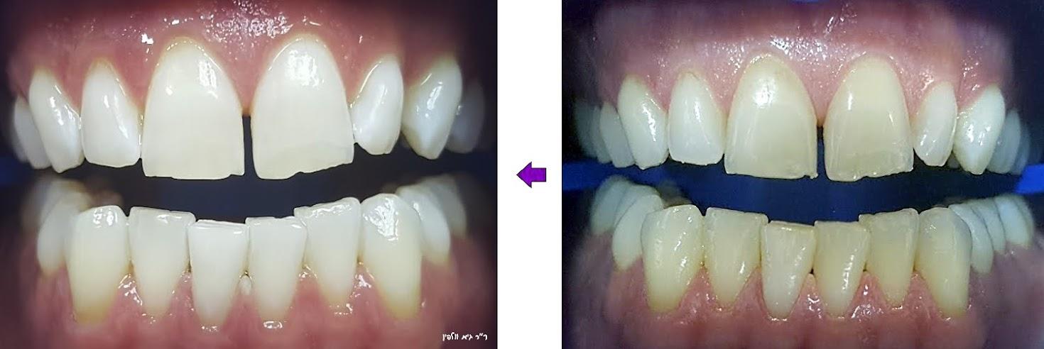 הלבנת שיניים תוך שעה במרפאה - אסתטיקה דנטלית, ד''ר גיא וולפין
