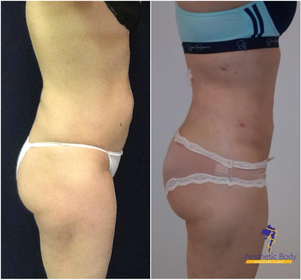 Before and After Brazilian Butt Lift and Ultra Slim Plus Treatments