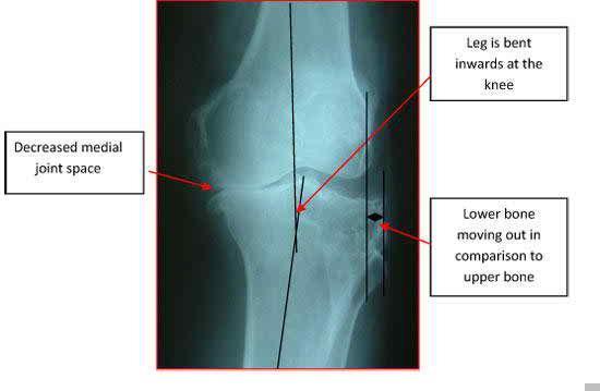 http://www.maurascollege.org/images/rheumatoid-arthritis-40-with-do-can-you-karate-kansas-olathe-26257.jpg