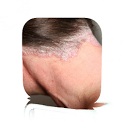 Scalp Psoriasis Guide icon