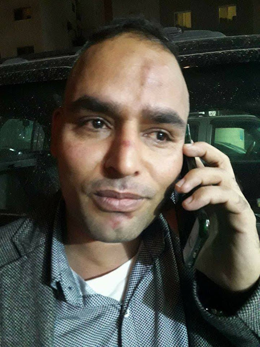 नेपाली पत्रकारमाथि कुवेतमा आक्रमण