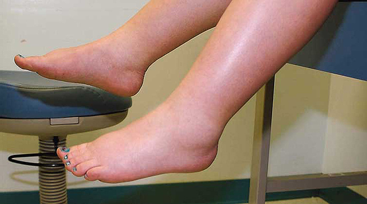 Feet And Ankles Swell Up During Pregnancy
