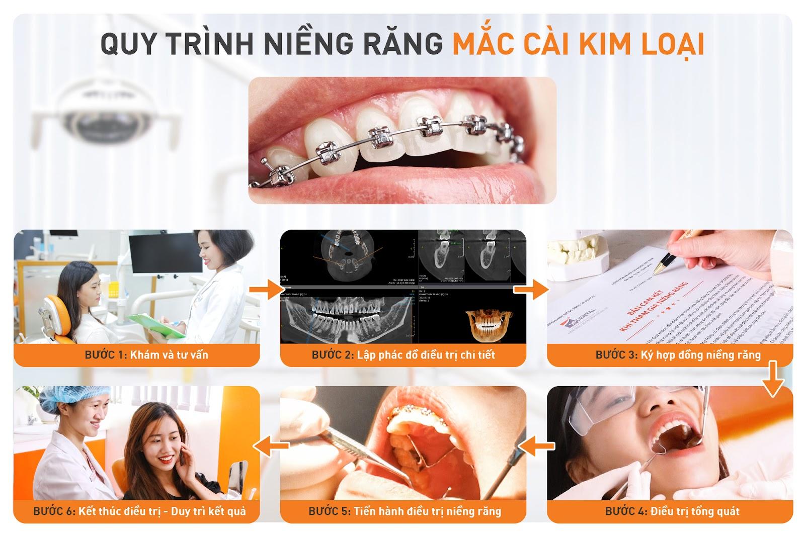 quy trình niềng răng tại up dental
