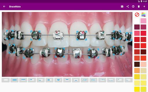 BraceMate 1.4.0 screenshots 7