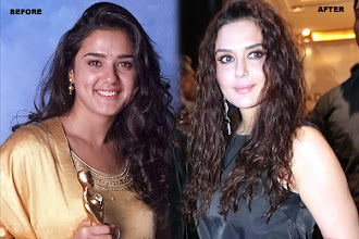 Photo: Actress Preity Zinta reportedly underwent liposuction and face lifts for a sexier look. Preity also removed the laughter lines which developed post 'Salaam Namastey'. The nose job is but obvious. Quite a drastic change, from the cute girl in 'Kya Kehna' to the hot IPL team owner.