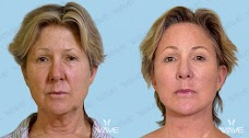 Prolase Laser Clinic Glendale los-angeles USA