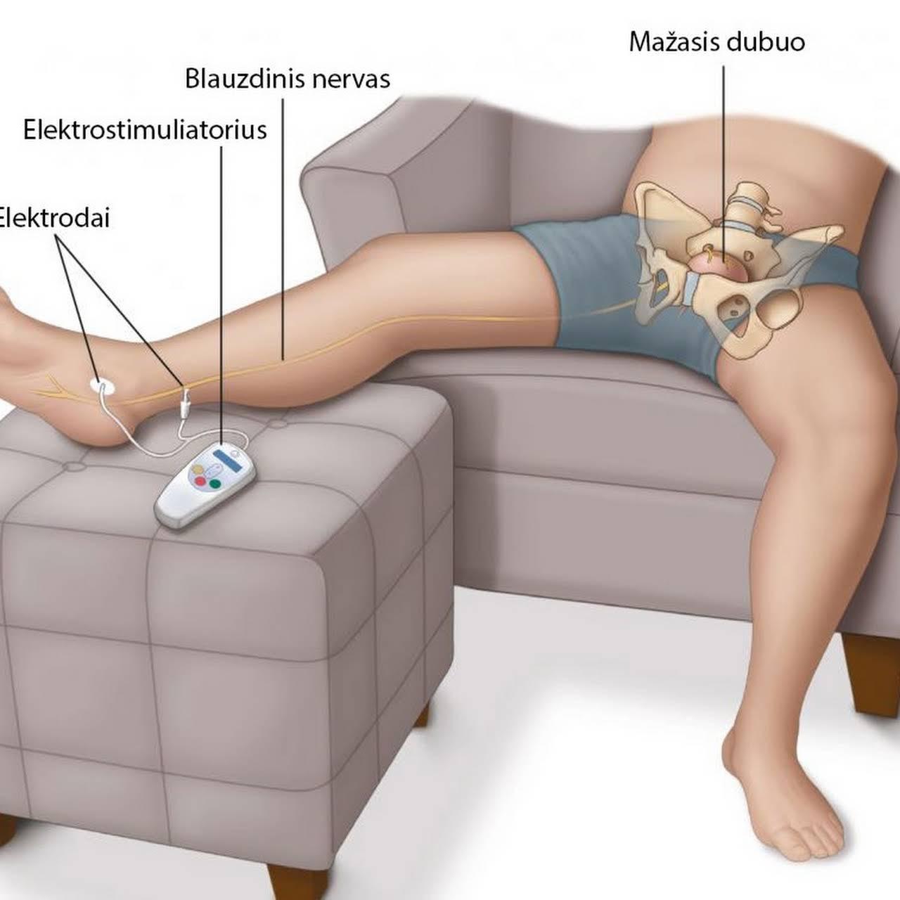 elektrodai prie varpos
