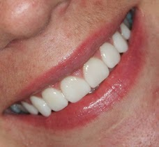 The Harley Street Smile Clinic - Cosmetic Dentistry