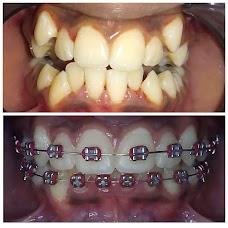 Golden Smile Dental Clinic thiruvananthapuram