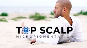Top Scalp Micro / Scalp Micropigmentation