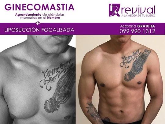 Ginecomastia en Quito al mejor precio