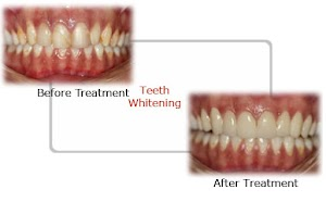 SMiLZ Dental Treatment Facility