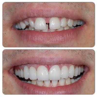 مرکز زیبایی دندان کمیل