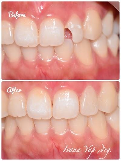 Osaka dental care / klinik gigi Osaka / Drg. Ivana Yap