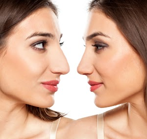 Dr Kaoutar El Benna-Ghidalia-chirurgie et medecine esthetique Liposuccion- Epilation laser-Botox