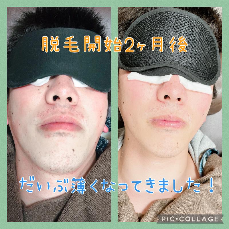 ヒゲ脱毛専門 BALANCE