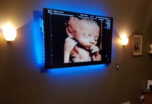 Fetal Vision Imaging