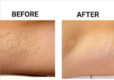 DermaCure Laser Center islamabad