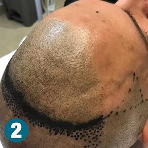 TRICODERMSOLUTIONS Dermopigmentazione Paramedicale Trucco Permanente Tricopigmentazione