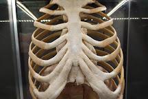 Exposicion Human Bodies. Anatomia de la vida., Barcelona, Spain