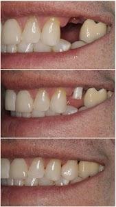 Dr. Nikhil's Dental Clinic and Implant Centre