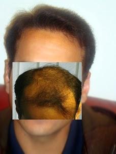Aneels Hair Transplant islamabad
