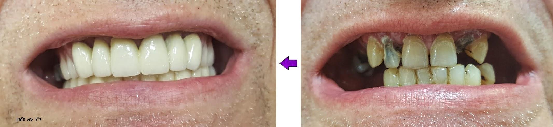 שיקום הפה אסתטיקה דנטלית רופא שיניים מומלץ - ד''ר גיא וולפין