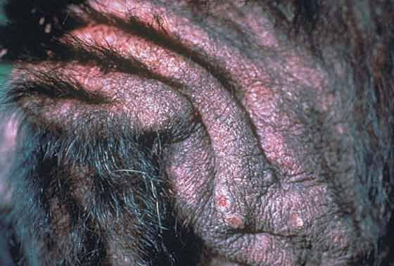 Alopecia, lichenification, focal ulceration, and crusting of the tail-base in an 11-year-old, spayed Labrador Retriever mixed breed with flea-bite hypersensitivity