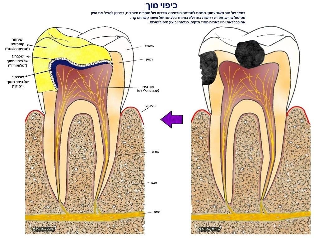 """כיפוי מוך: להציל שן עם ריקבון עמוק מטיפול שורש, ד""""ר גיא וולפין, אסתטיקה דנטלית ושיקום הפה"""