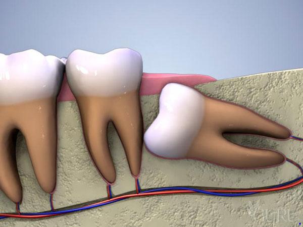 Nhổ răng khôn bao lâu thì lành và nên kiêng gì? - Nha Khoa Bally
