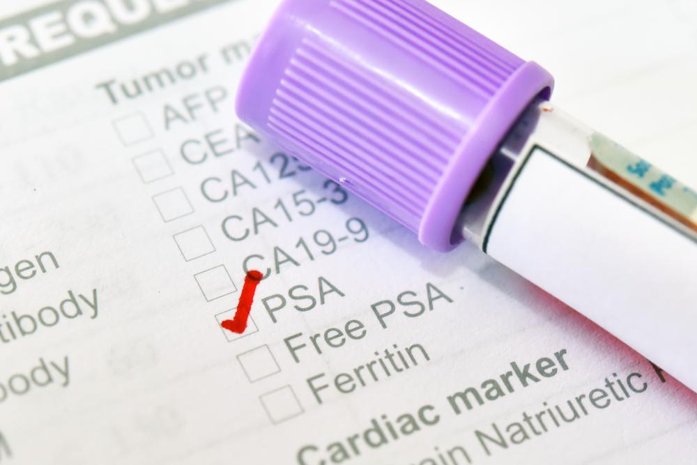 Há mais de duas décadas, PSA faz parte do protocolo de cuidados médicos de homens. (Fonte: Shutterstock)