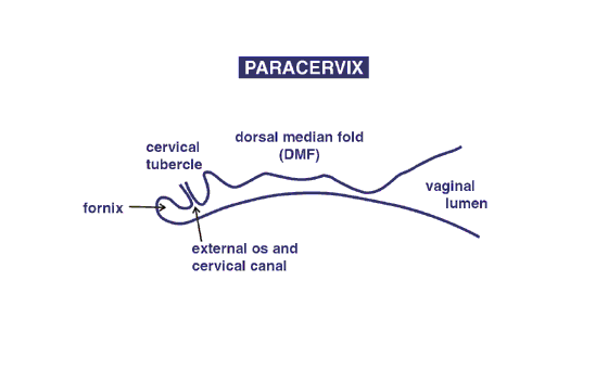 The relationship of the features of the paracervix are illustrated.