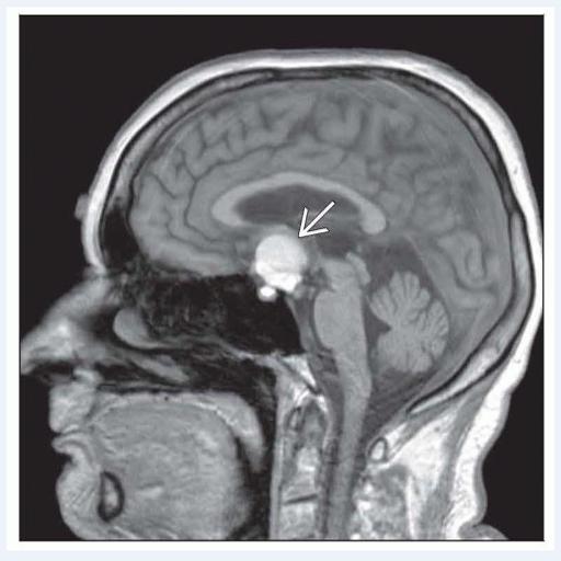 Craniopharyngioma brain tumor (app)