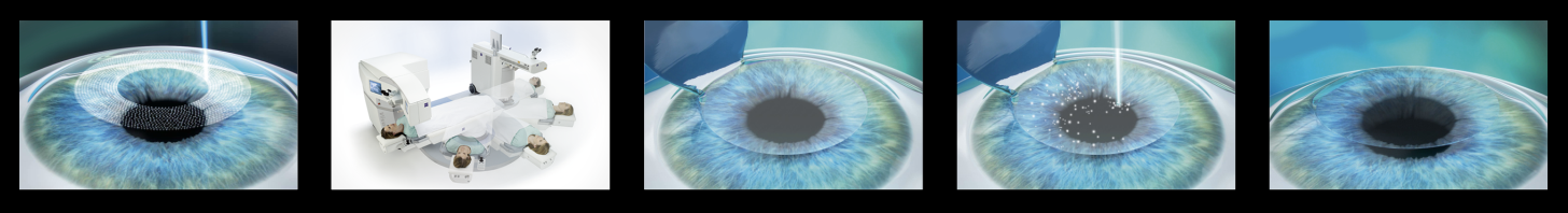 LASIK eye surgery step by step process