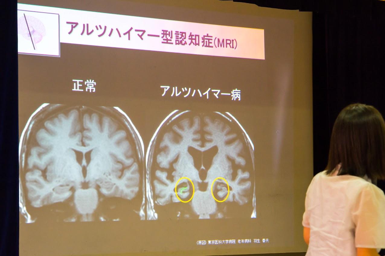 MRI(Magnetic Resonance Imaging:磁気共鳴画像)