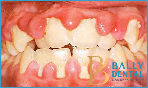 Quy trình lấy cao răng bằng máy siêu âm tiêu chuẩn Quốc tế 1