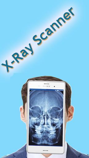Xray Scanner