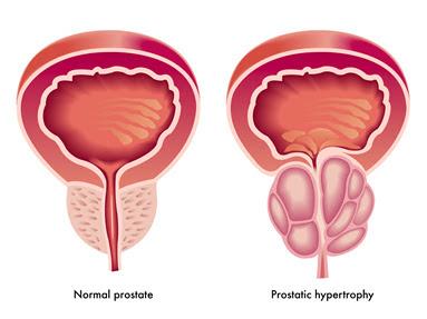 Sekilas Tentang Kanker Prostat 1