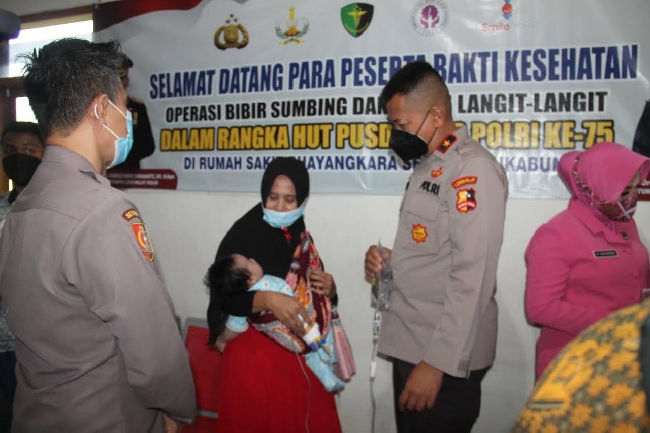 Setukpa Lemdiklat Polri Gelar Operasi Bibir Sumbing Gratis Untuk Anak-Anak