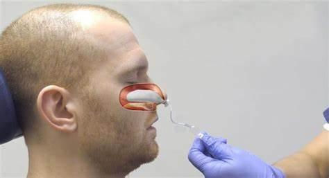 عمل بینی بدون تامپون