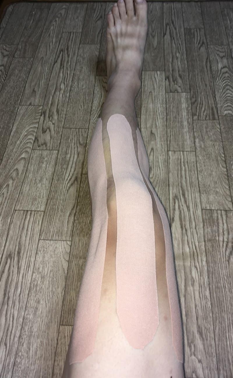膝の痛みにオススメのテーピング②