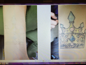 Photo: Pre 11th Laser Tattoo Removal Treatment (Crown) at Las Vegas Dermatology- Before on R, After on L- Just a few more to go!