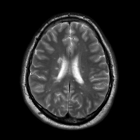 From: https://radiopaedia.org/cases/multiple-sclerosis (Thanks again Radiopaedia!)
