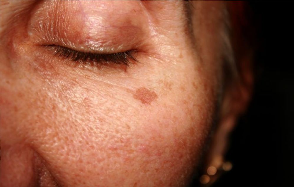 How to get rid of age spots within just 2-4 weeks!