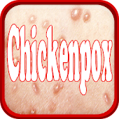 Chickenpox Disease