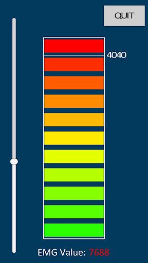 Dotri EMG Bar Graph
