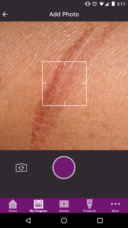 My Mederma- screenshot